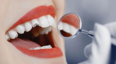 Poškodba zoba